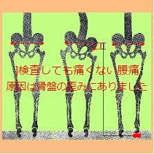 夜痛む腰から足の痛みの治療と口コミ