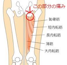 半年前からの股関節(足の付け根)の痛みの治療