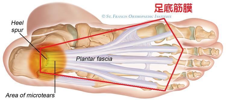 足底筋膜炎(足裏・かかとの痛み) part2