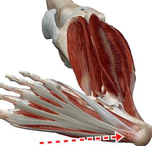 足底筋膜炎画像