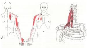 頚椎ヘルニア2