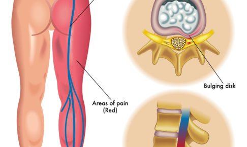 椎間板ヘルニアの症状