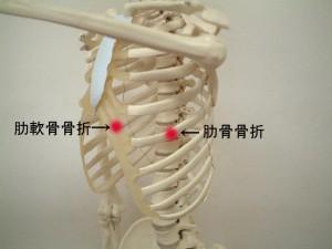 肋骨骨折疑い