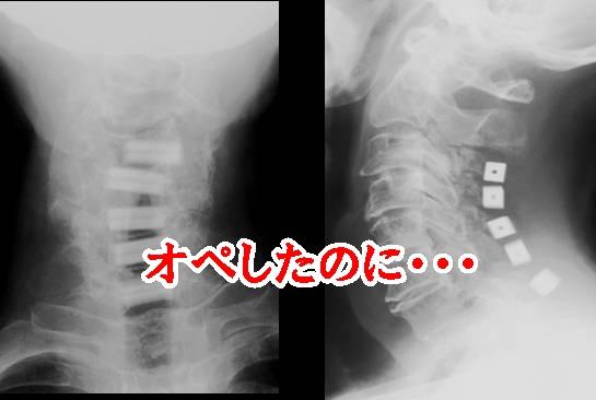 頸椎ヘルニアで手術したはずなのに痛む方の口コミ