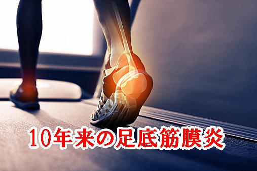 10年来の足底筋膜炎(踵の痛み)の方の治療