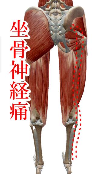 坐骨神経痛画像