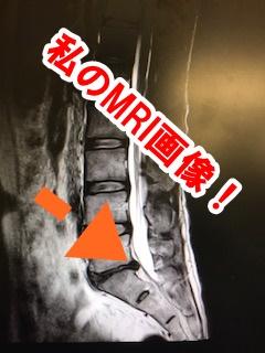椎間板ヘルニアと診断されたMRI