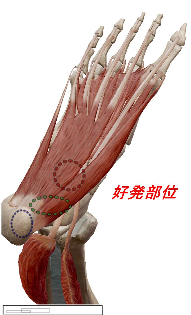 足底筋膜炎好発部位
