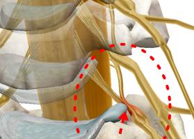 腰椎椎間板ヘルニアの原因・症状・治療・予防を解説
