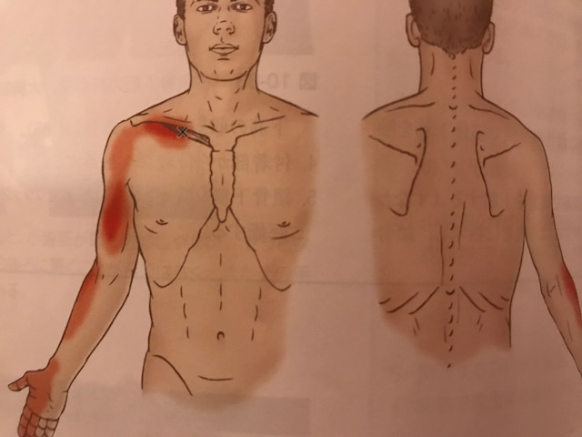 鎖骨下筋トリガーポイント
