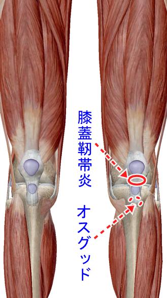 オスグッドと膝蓋靭帯炎併発