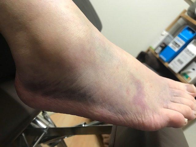 足関節捻挫治療