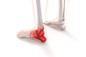 5分歩くと痛くなる足底筋膜炎の治療