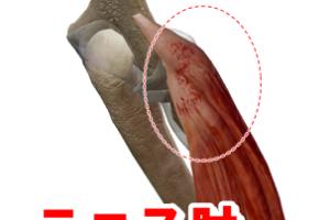 テニス肘(外側上顆炎)の治療