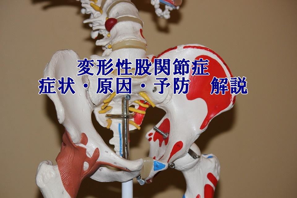 股関節の痛み・変形性股関節症・症状・原因・治療解説