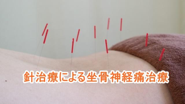ヘルニアと診断されている坐骨神経痛への鍼・針治療
