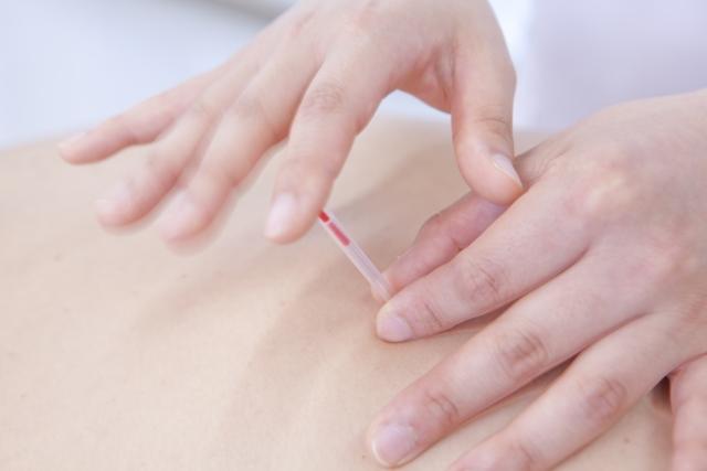 手の痺れ・肘の痛み・両膝の痛みを鍼(針)治療で改善